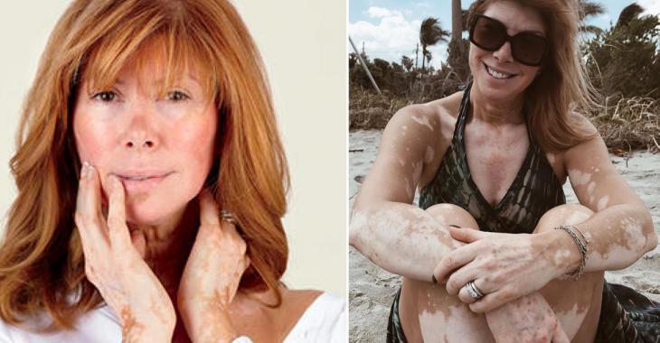 Chantal Lacroix brise le silence au sujet de la photo d'elle qui est devenue virale sur Internet